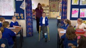 Une fille portant une jambe prothétique entre en classe pour la première fois et reçoit le meilleur des accueils de la part de ses camarades
