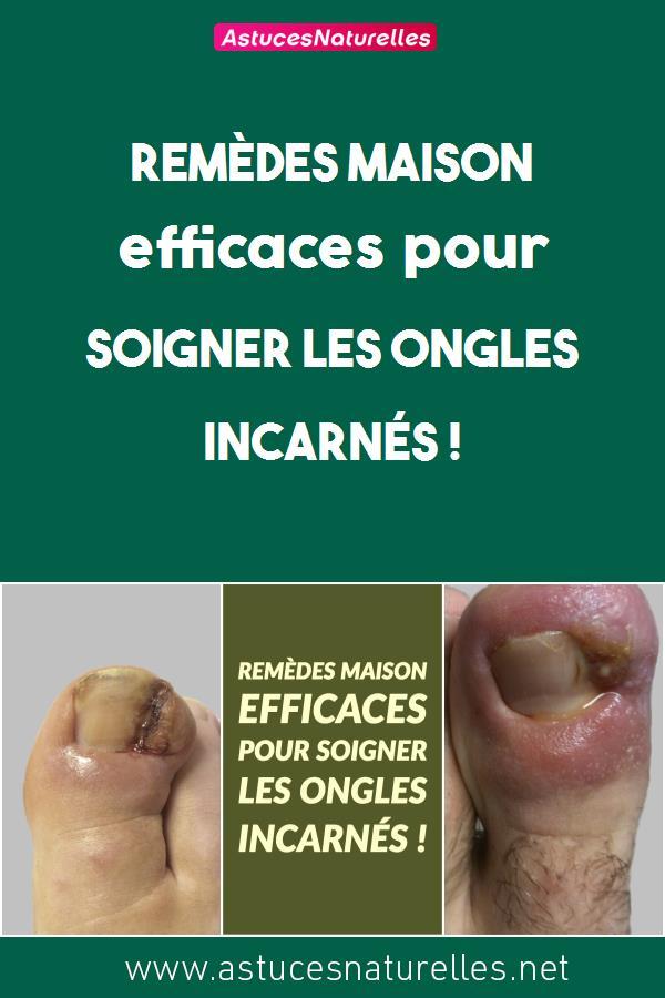 Remèdes maison efficaces pour soigner les ongles incarnés !