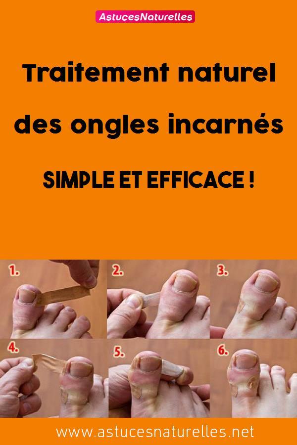 Traitement naturel des ongles incarnés simple et efficace !