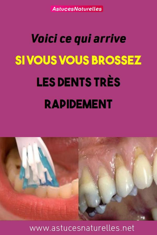 Voici ce qui arrive si vous vous brossez les dents très rapidement