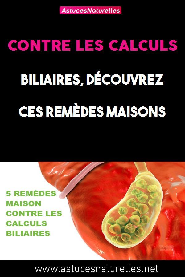 CONTRE LES CALCULS BILIAIRES, DÉCOUVREZ CES REMÈDES MAISONS