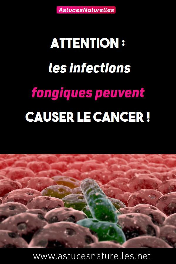 Attention : les infections fongiques peuvent causer le cancer !