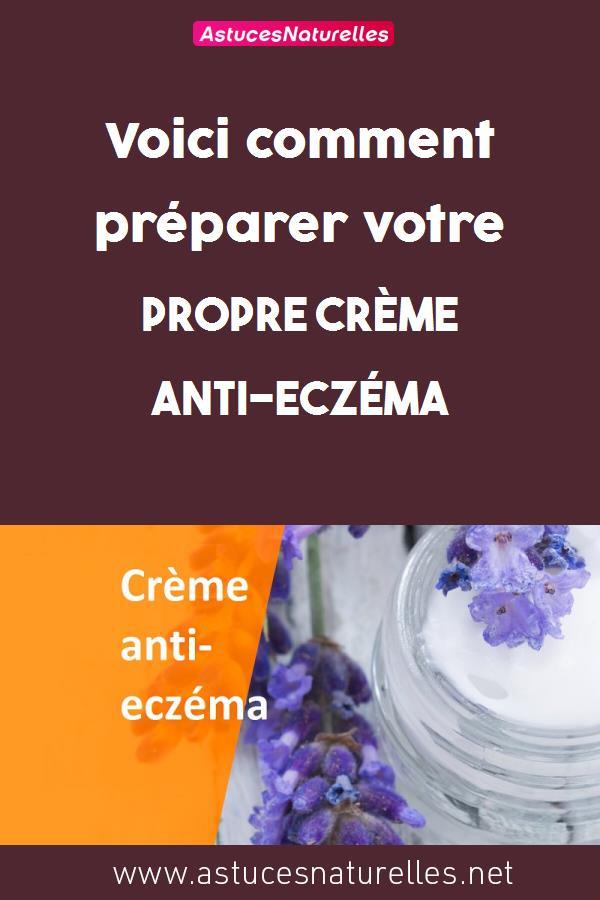 Voici comment préparer votre propre crème anti-eczéma