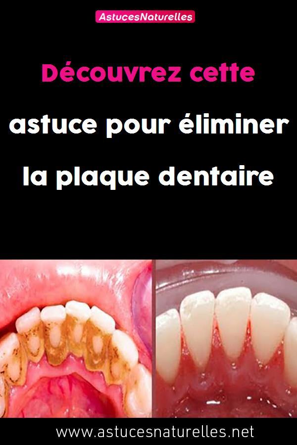 Découvrez cette astuce pour éliminer la plaque dentaire