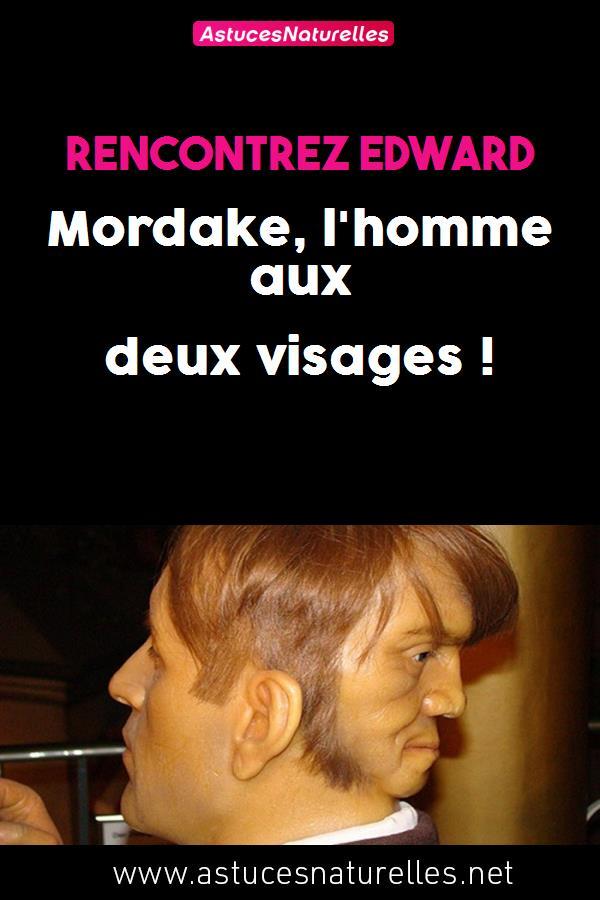 Rencontrez Edward Mordake, l'homme aux deux visages !