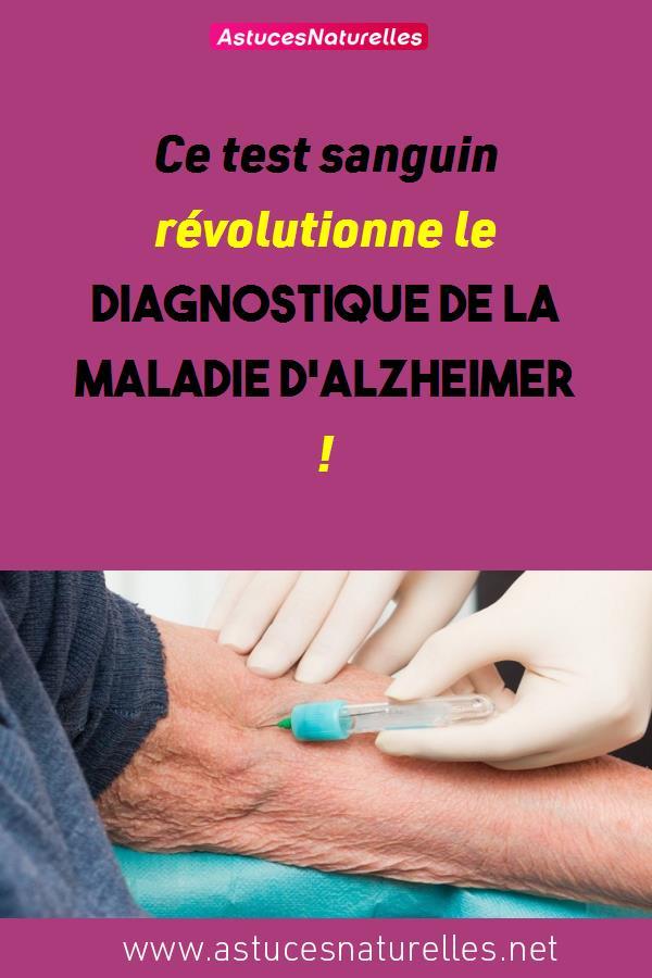 Ce test sanguin révolutionne le diagnostique de la maladie d'Alzheimer !