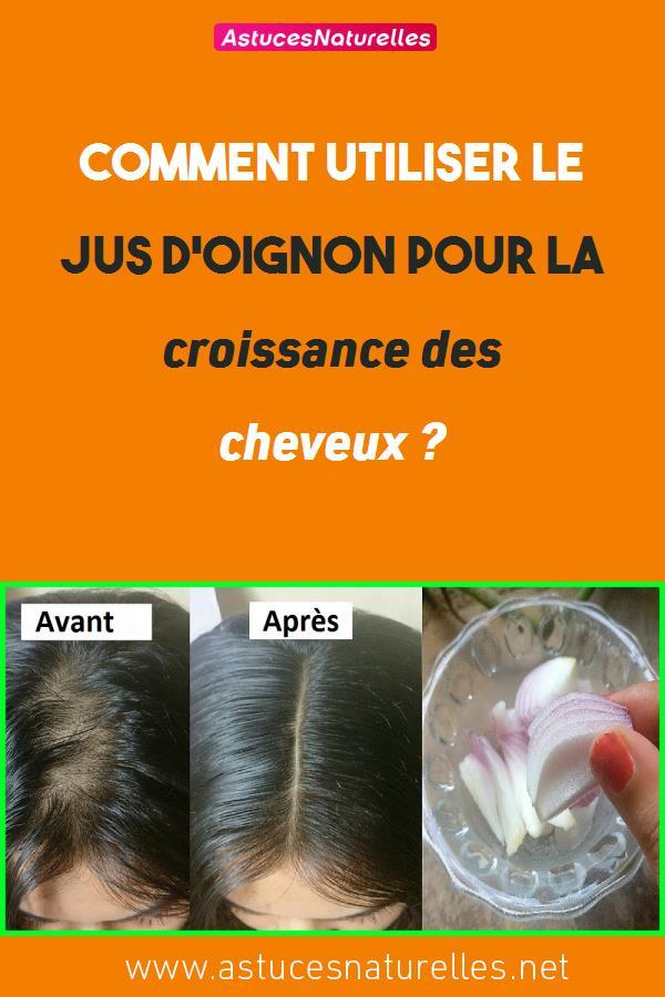 Comment utiliser le jus d'oignon pour la croissance des cheveux ?