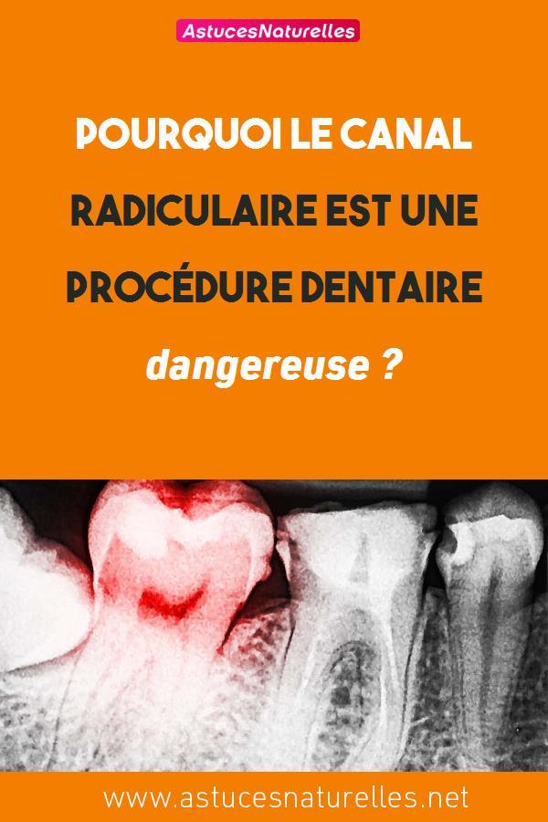 Pourquoi le traitement du canal radiculaire est une procédure dentaire dangereuse ?