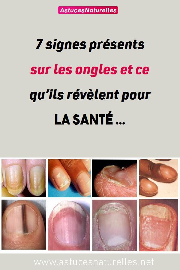7 signes présents sur les ongles et ce qu'ils révèlent pour la santé …