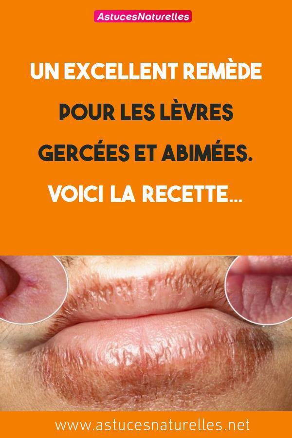 Un excellent remède pour les lèvres gercées et abimées. Voici la recette…