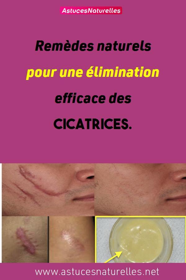 Remèdes naturels pour une élimination efficace des cicatrices.