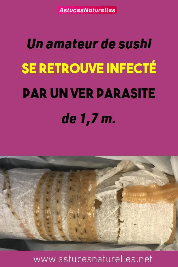 Un amateur de sushi se retrouve infecté par un ver parasite de 1,7 m.