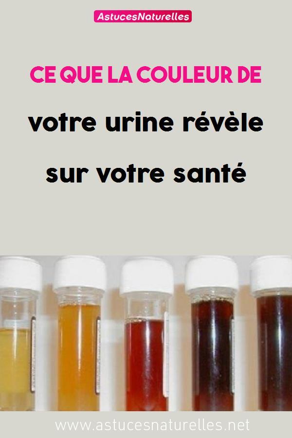 Ce que la couleur de votre urine révèle sur votre santé