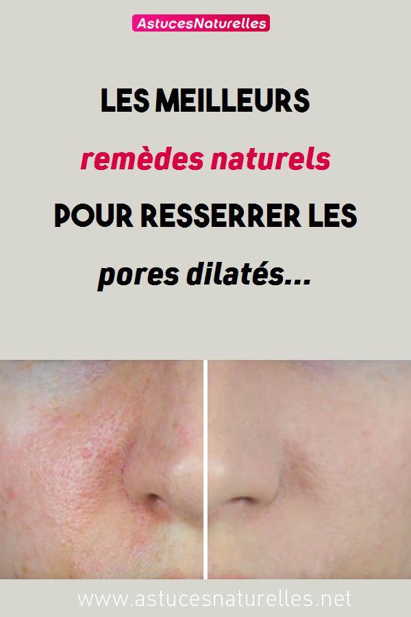 Les meilleurs remèdes naturels pour resserrer les pores dilatés…