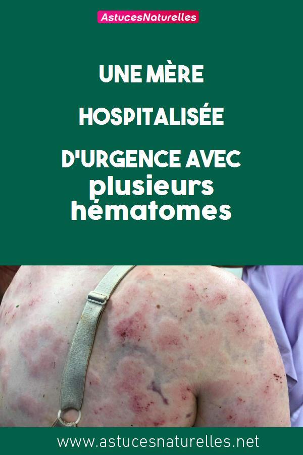 Une mère hospitalisée d'urgence avec plusieurs hématomes