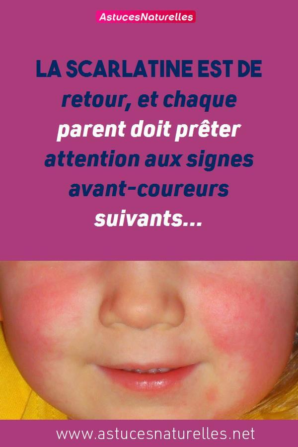 La scarlatine est de retour, et chaque parent doit prêter attention aux signes avant-coureurs suivants…