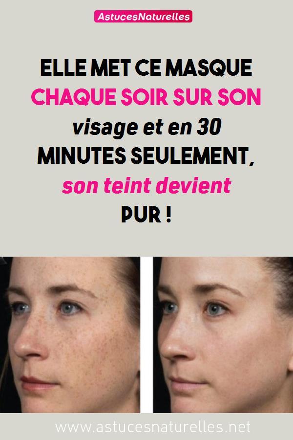 Elle met ce masque chaque soir sur son visage et en 30 minutes seulement, son teint devient pur !