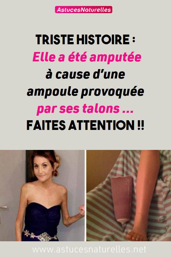 Triste histoire : Elle a été amputée à cause d'une ampoule provoquée par ses talons … Faites Attention !!