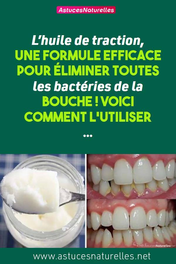 L'huile de traction, une Formule efficace pour éliminer toutes les bactéries de la bouche ! Voici comment l'utiliser …