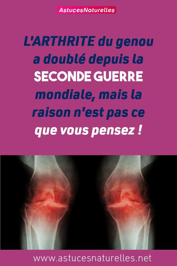 L'ARTHRITE du genou a doublé depuis la seconde guerre mondiale, mais la raison n'est pas ce que vous pensez !