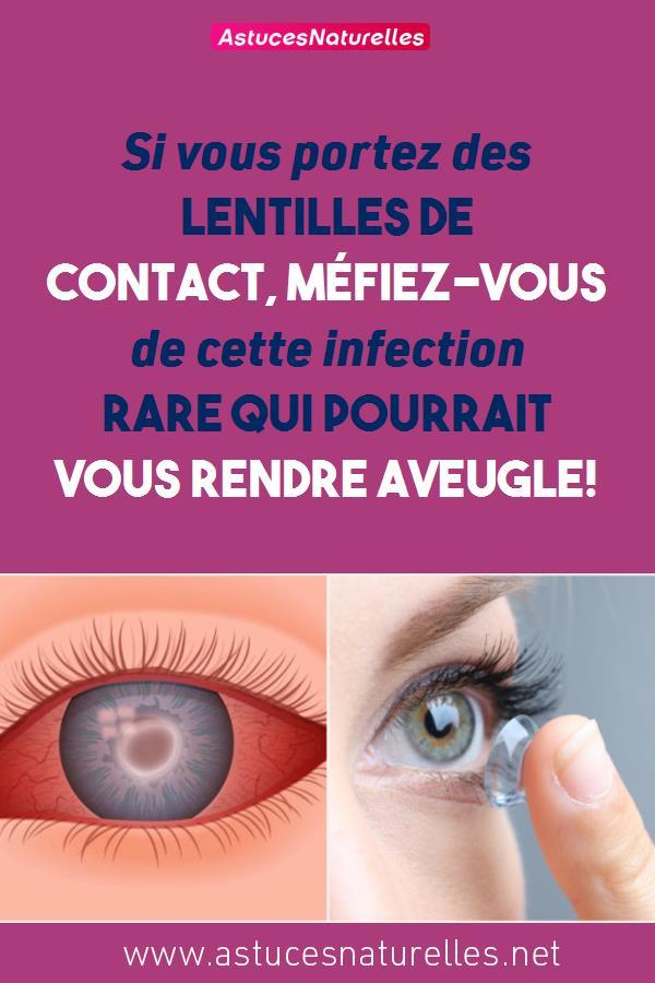Si vous portez des lentilles de contact, méfiez-vous de cette infection rare qui pourrait vous rendre aveugle!
