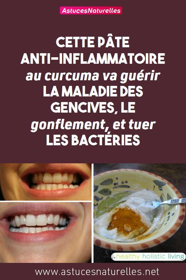 Cette pâte anti-inflammatoire au curcuma va guérir la maladie des gencives, le gonflement, et tuer les bactéries