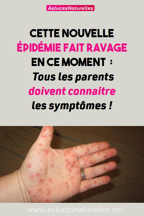 Cette nouvelle épidémie fait ravage En ce moment : Tous les parents doivent connaitre les symptômes !