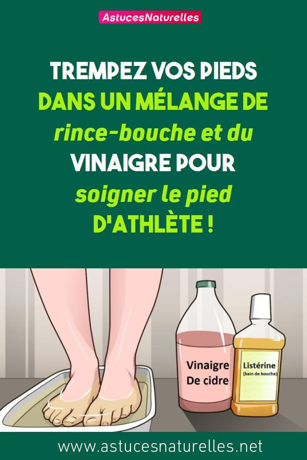 Trempez vos pieds dans un mélange de rince-bouche et du vinaigre pour soigner le pied d'athlète !