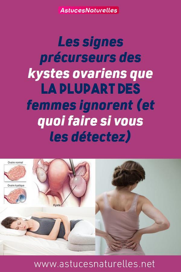Les signes précurseurs des kystes ovariens que la plupart des femmes ignorent (et quoi faire si vous les détectez)