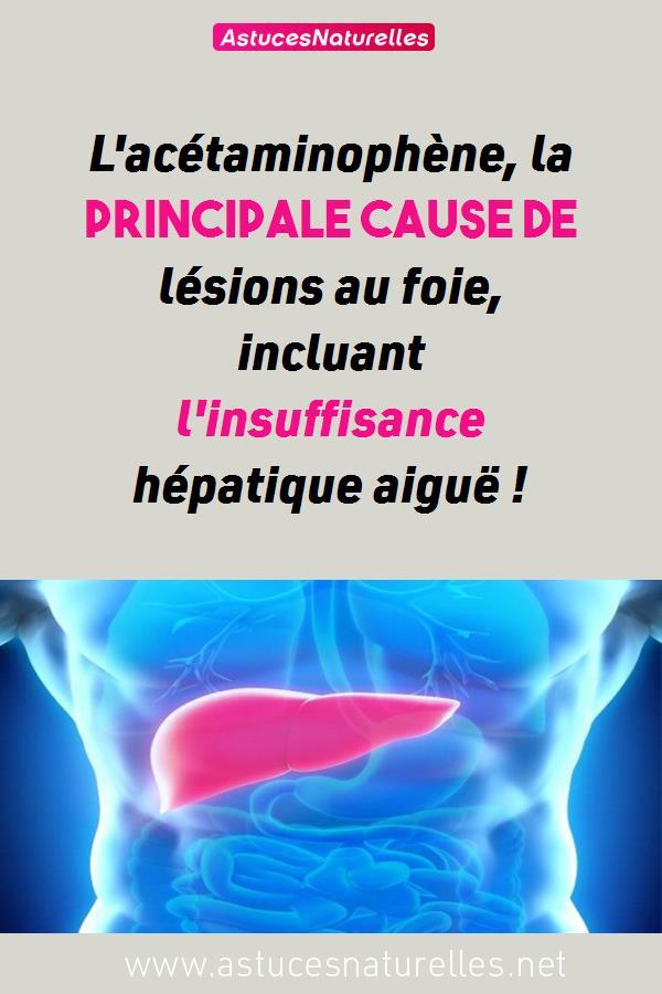 L'acétaminophène, la principale cause de lésions au foie, incluant l'insuffisance hépatique aiguë !