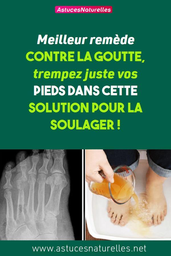 Meilleur remède contre la goutte, trempez juste vos pieds dans cette solution pour la soulager  !