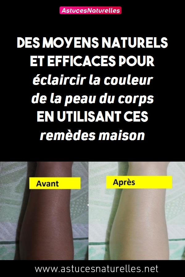 Des moyens naturels et efficaces pour éclaircir la couleur de la peau du corps en utilisant ces remèdes maison