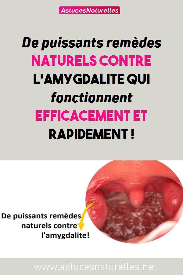 De puissants remèdes naturels contre l'amygdalite qui fonctionnent efficacement et rapidement !