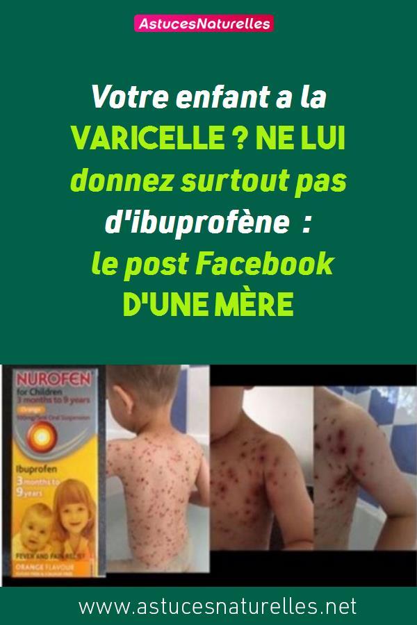 Votre enfant a la varicelle ? Ne lui donnez surtout pas d'ibuprofène : le post Facebook d'une mère