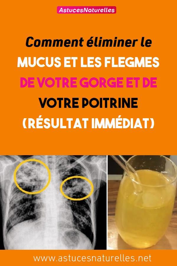 Comment éliminer le mucus et les flegmes de votre gorge et de votre poitrine (résultat immédiat)