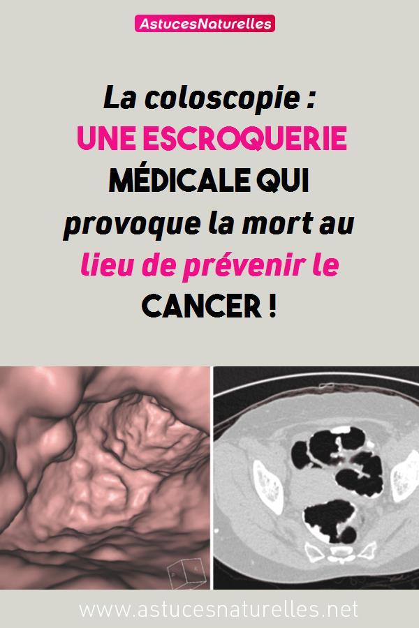 La coloscopie : une escroquerie médicale qui provoque la mort au lieu de prévenir le cancer !