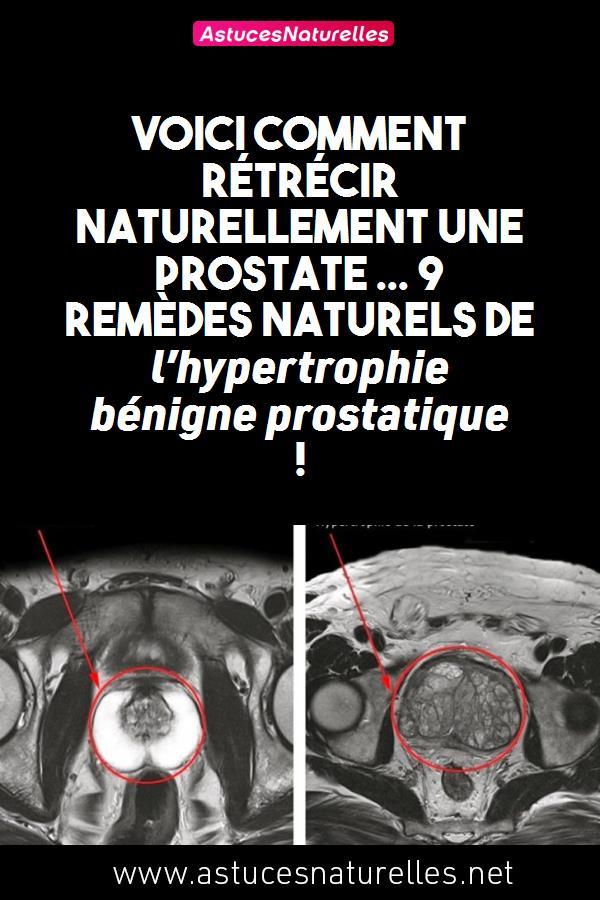 Voici comment rétrécir naturellement une prostate … 9 Remèdes naturels de l'hypertrophie bénigne prostatique !