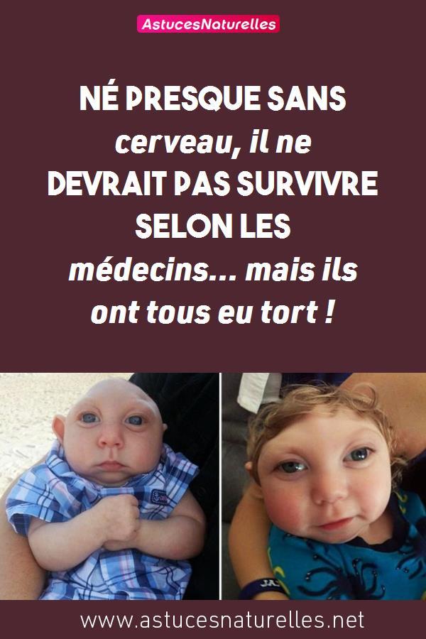 Né presque sans cerveau, il ne devrait pas survivre selon les médecins… mais ils ont tous eu tort !
