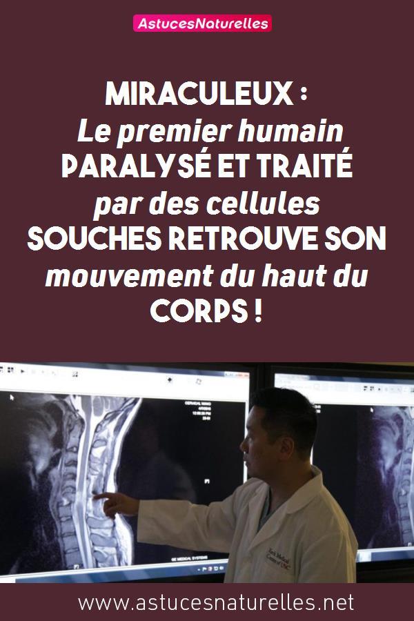 Miraculeux : Le premier humain paralysé et traité par des cellules souches retrouve son mouvement du haut du corps !