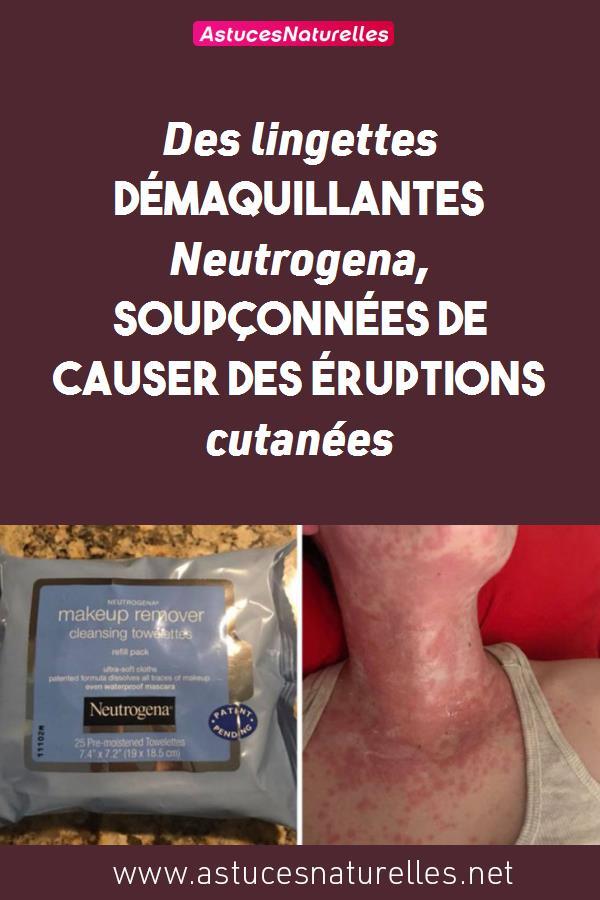 Des lingettes démaquillantes Neutrogena, soupçonnées de causer des éruptions cutanées