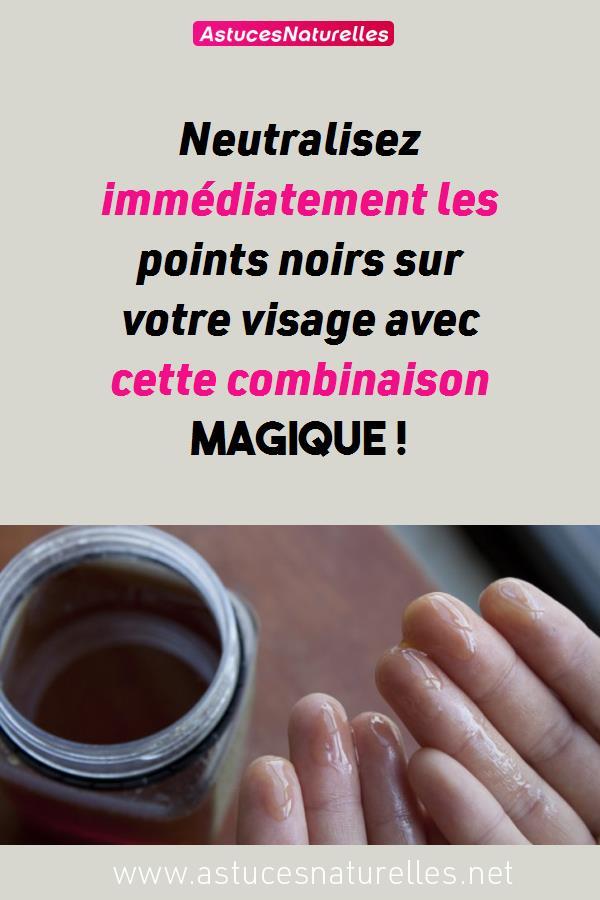 Neutralisez immédiatement les points noirs sur votre visage avec cette combinaison magique !
