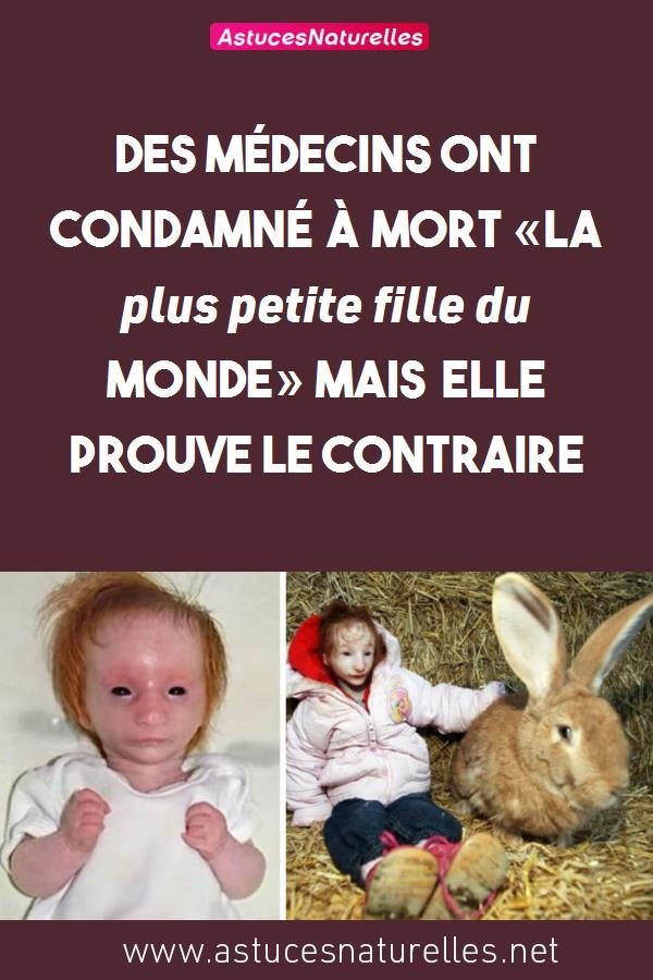 Des médecins ont condamné à mort «La plus petite fille du monde» mais elle prouve le contraire