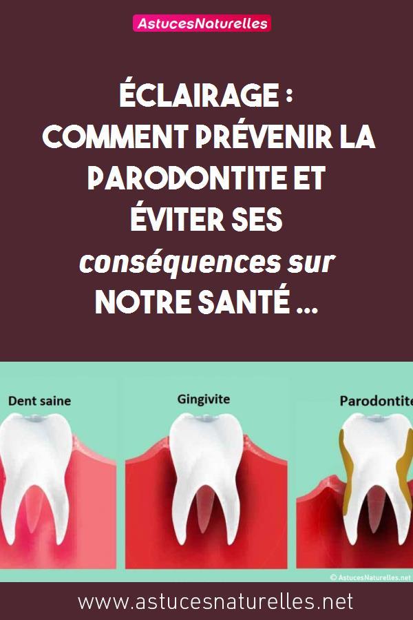 Éclairage : Comment prévenir la parodontite et éviter ses conséquences sur notre santé …