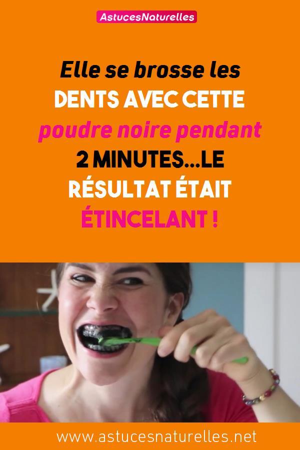 Elle se brosse les dents avec cette poudre noire pendant 2 minutes…Le résultat était étincelant !