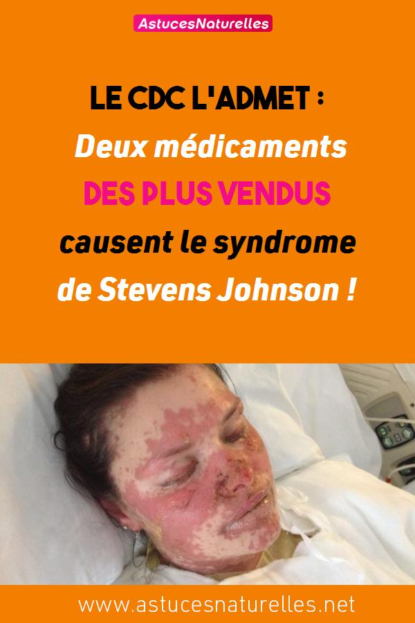 Le CDC l'admet : Deux médicaments des plus vendus causent le syndrome de Stevens Johnson !