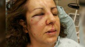 Mère brutalement agressée par ados alors qu'elle allait au lycée pour parler de sa fille brutalisée