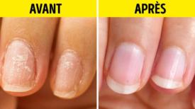 10 Remèdes de grand-mère qui feront des merveilles pour tes ongles