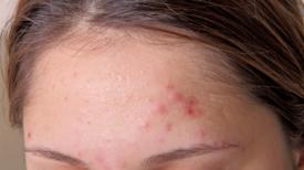 9 signes qui montrent que vous êtes surchargés de toxines