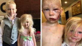 Garçon de 6 ans considéré comme un héros pour avoir sauvé sa petite sœur de l'attaque d'un chien