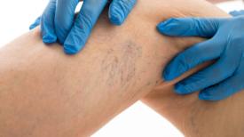 8 règles à suivre pour guérir les varices